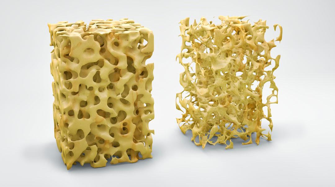 sintomi osteoporosi bergamo